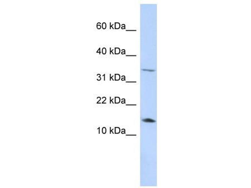 Western Blotting (WB) image for anti-Leptin (LEP) (Middle Region) antibody (ABIN634796)