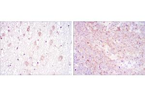 Immunohistochemistry (IHC) image for anti-CD1a Molecule (CD1A) antibody (ABIN969017)