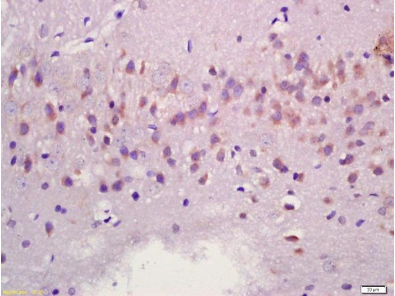 Immunohistochemistry (IHC) image for anti-MAPK11 antibody (Mitogen-Activated Protein Kinase 11) (AA 20-70) (ABIN754393)