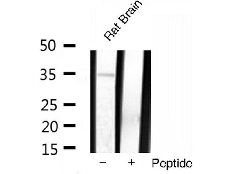 Image no. 2 for anti-Tumor Necrosis Factor alpha (TNF) antibody (ABIN6269443)