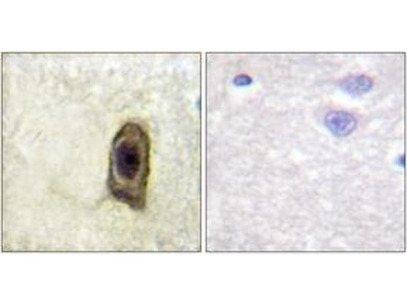 Immunohistochemistry (IHC) image for anti-Colony Stimulating Factor 1 Receptor (CSF1R) (AA 531-580), (pTyr561) antibody (ABIN1531563)