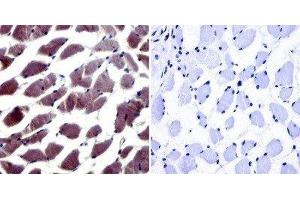 Immunohistochemistry (Paraffin-embedded Sections) (IHC (p)) image for anti-NFAT5 antibody (Nuclear Factor of Activated T-Cells 5, Tonicity-Responsive) (C-Term) (ABIN267152)