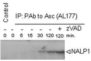 Image no. 1 for anti-NLR Family, Pyrin Domain Containing 1 (NLRP1) antibody (ABIN187292)