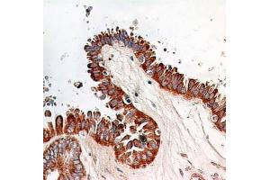 Immunohistochemistry (Paraffin-embedded Sections) (IHC (p)) image for anti-Nuclear Factor-KB P65 (NFkBP65) antibody (ABIN252655)