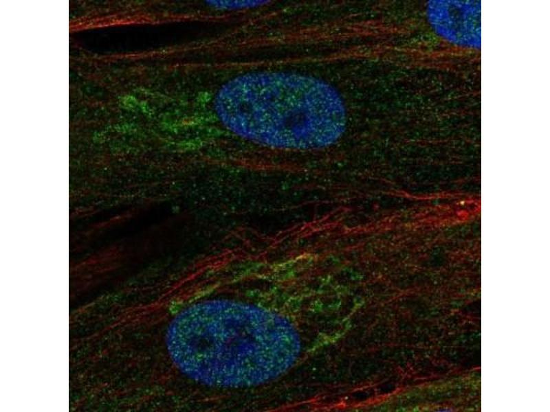 Immunofluorescence (IF) image for anti-Regulator of Chromosome Condensation (RCC1) and BTB (POZ) Domain Containing Protein 2 (RCBTB2) antibody (ABIN4349735)