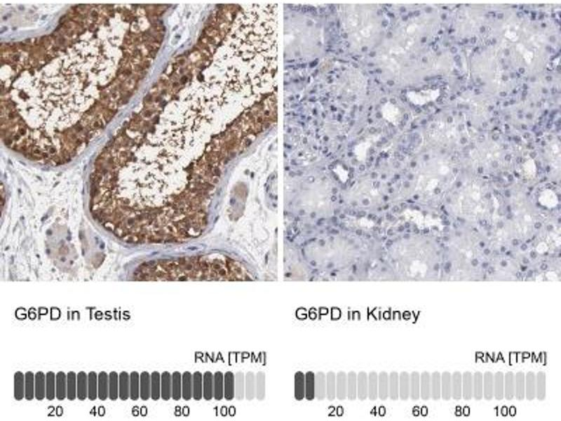 Immunohistochemistry (Paraffin-embedded Sections) (IHC (p)) image for anti-Glucose-6-Phosphate Dehydrogenase (G6PD) antibody (ABIN4314533)