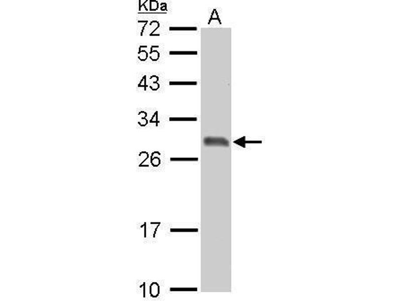 Western Blotting (WB) image for anti-Stratifin (SFN) (C-Term) antibody (ABIN2854692)
