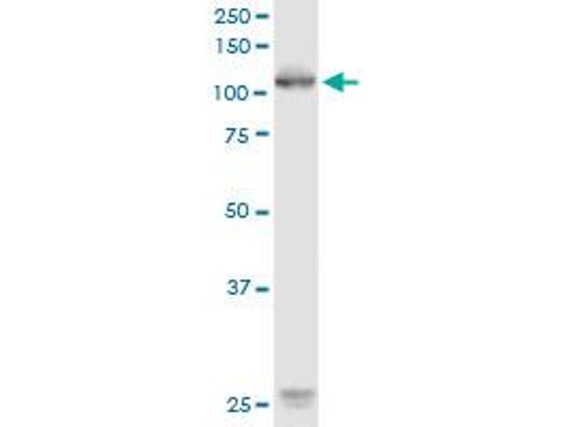 Western Blotting (WB) image for anti-Receptor Tyrosine Kinase-Like Orphan Receptor 1 (ROR1) (AA 294-393), (partial) antibody (ABIN518454)