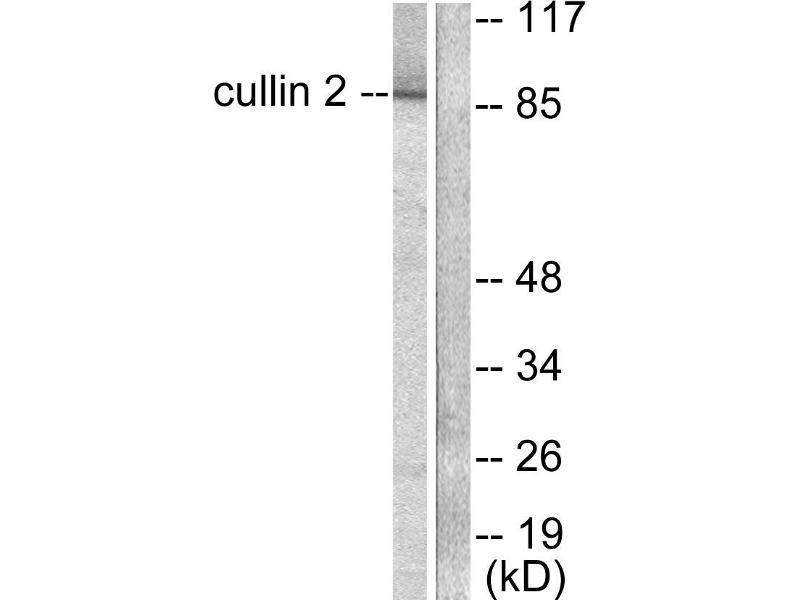 Image no. 2 for anti-Cullin 2 (CUL2) antibody (ABIN1575907)
