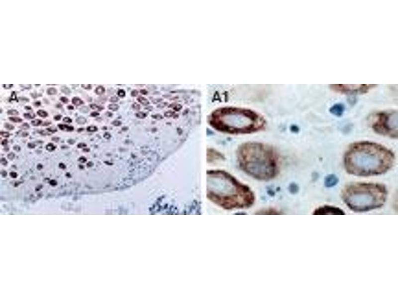 Immunohistochemistry (IHC) image for anti-TRAF2 antibody (TNF Receptor-Associated Factor 2) (AA 6-31) (ABIN252172)