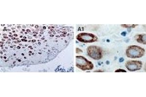 Immunohistochemistry (IHC) image for anti-TNF Receptor-Associated Factor 2 (TRAF2) antibody (ABIN252172)