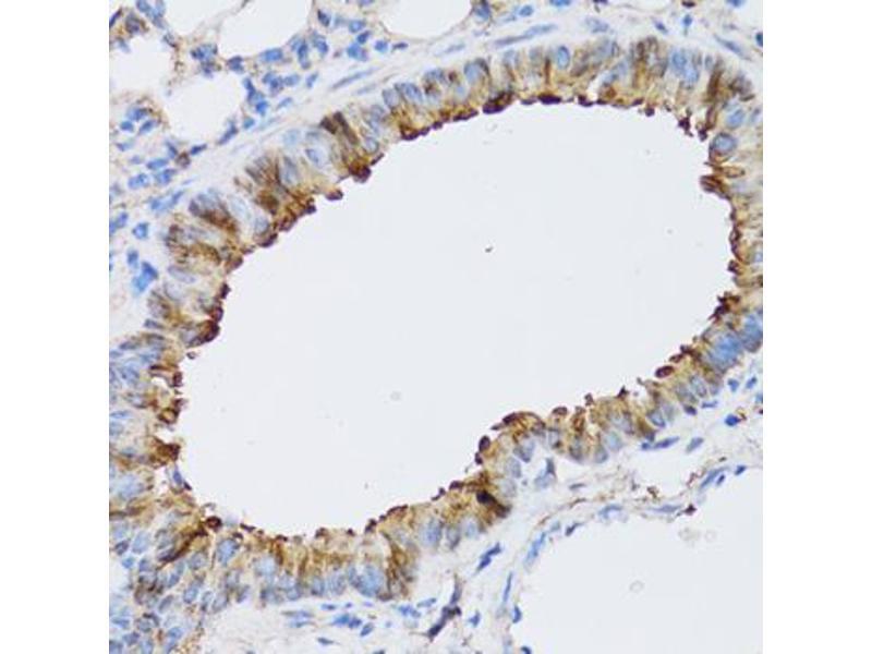Image no. 2 for anti-ARD1 Homolog, N-Acetyltransferase (ARD1A) antibody (ABIN2561191)