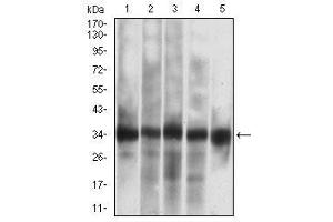 Western Blotting (WB) image for anti-Caspase 7, Apoptosis-Related Cysteine Peptidase (CASP7) (AA 29-198) antibody (ABIN5542605)