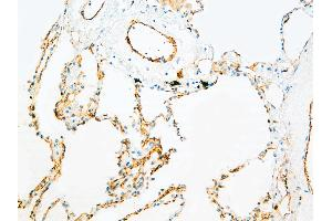 Immunohistochemistry (IHC) image for anti-CD31 antibody (Platelet/endothelial Cell Adhesion Molecule) (ABIN108424)