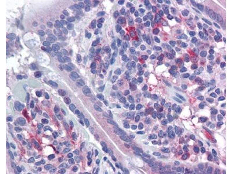 Immunohistochemistry (Paraffin-embedded Sections) (IHC (p)) image for anti-Vasodilator-Stimulated phosphoprotein (VASP) (Ser157) antibody (ABIN615579)