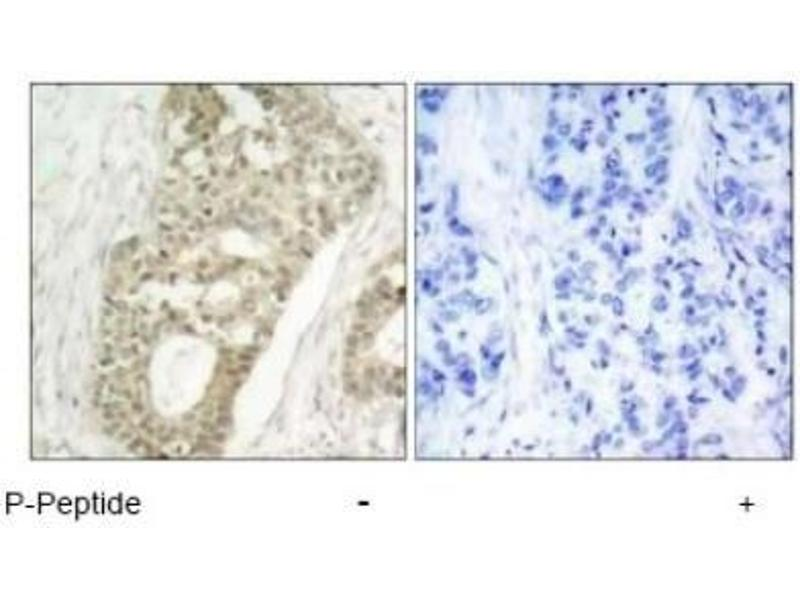 Immunohistochemistry (Paraffin-embedded Sections) (IHC (p)) image for anti-Protein Kinase C, delta (PKCd) (pSer645) antibody (ABIN4345829)