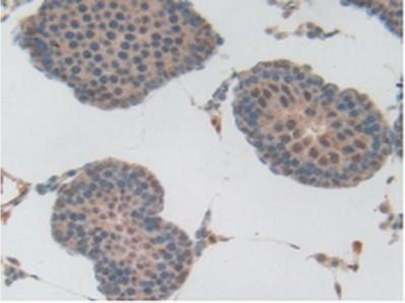 Immunohistochemistry (IHC) image for anti-Plasminogen (PLG) (AA 191-433) antibody (ABIN1078448)