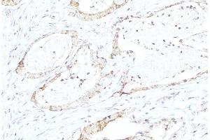 Image no. 3 for anti-Cytochrome P450, Family 21, Subfamily A, Polypeptide 2 (CYP21A2) antibody (ABIN6258056)