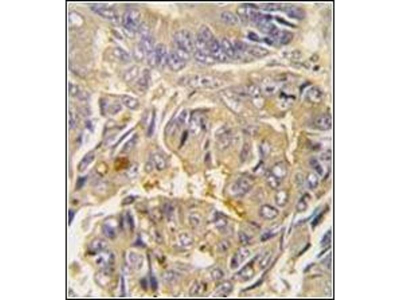 Immunohistochemistry (Paraffin-embedded Sections) (IHC (p)) image for anti-ATG16L1 antibody (ATG16 Autophagy Related 16-Like 1 (S. Cerevisiae)) (AA 84-114) (ABIN1449612)