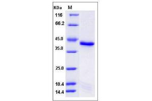 Image no. 1 for Protein tyrosine Phosphatase, Non-Receptor Type 2 (PTPN2) (AA 2-314) (Active) protein (His tag) (ABIN2008314)