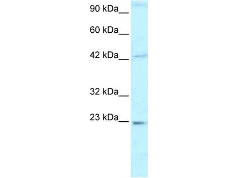 Western Blotting (WB) image for anti-High Mobility Group Box 2 (HMGB2) (C-Term) antibody (ABIN2777510)