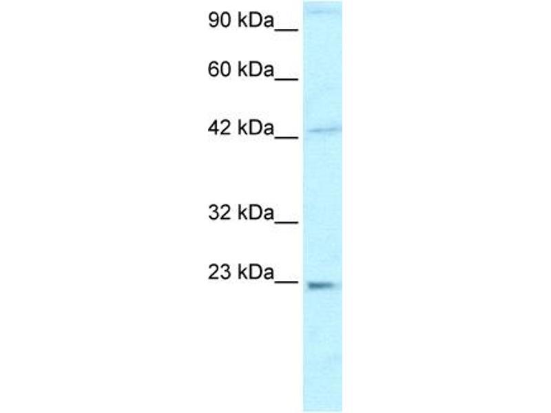 Western Blotting (WB) image for anti-High Mobility Group Box 2 (HMGB2) (C-Term) antibody (ABIN2777510)