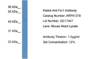 Image no. 2 for anti-Fizzy/cell Division Cycle 20 Related 1 (Drosophila) (FZR1) (N-Term) antibody (ABIN2773984)