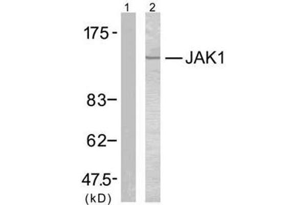 Western blot analysis of extracts from MCF7 cells using JAK1 (Ab-1022) antibody (E021119).