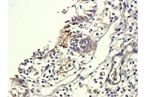 Immunohistochemistry (Paraffin-embedded Sections) (IHC (p)) image for anti-TGFB1 antibody (Transforming Growth Factor, beta 1) (N-Term) (ABIN2506704)