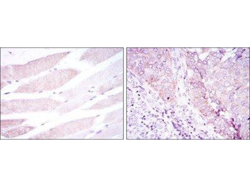 Immunohistochemistry (IHC) image for anti-Bone Morphogenetic Protein Receptor, Type II (serine/threonine Kinase) (BMPR2) antibody (ABIN4284959)
