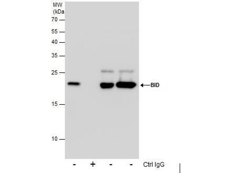 Immunoprecipitation (IP) image for anti-BH3 Interacting Domain Death Agonist (BID) (Center) antibody (ABIN2855009)