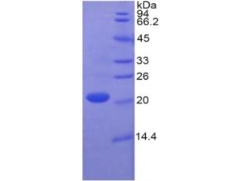 Caspase 1 (CASP1) ELISA Kit (2)