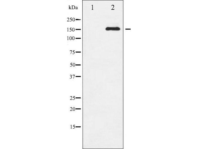 Western Blotting (WB) image for anti-Epidermal Growth Factor Receptor (EGFR) (pSer1071) antibody (ABIN6256098)