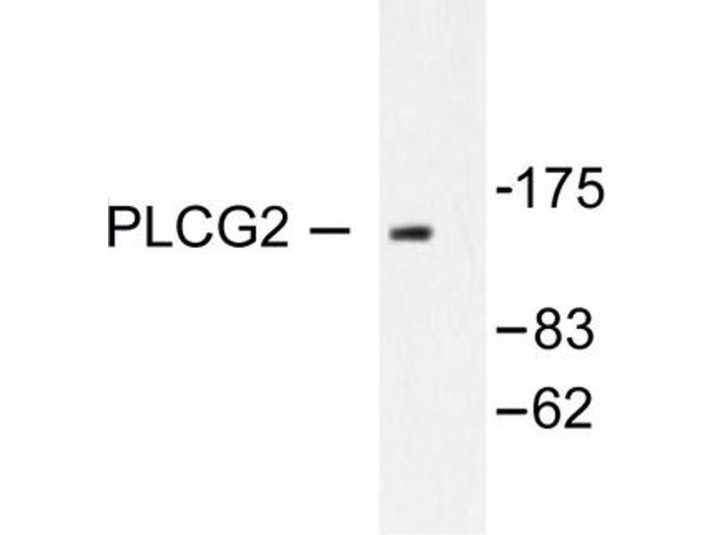image for anti-Phospholipase C gamma 2 antibody (PLCG2) (ABIN271905)