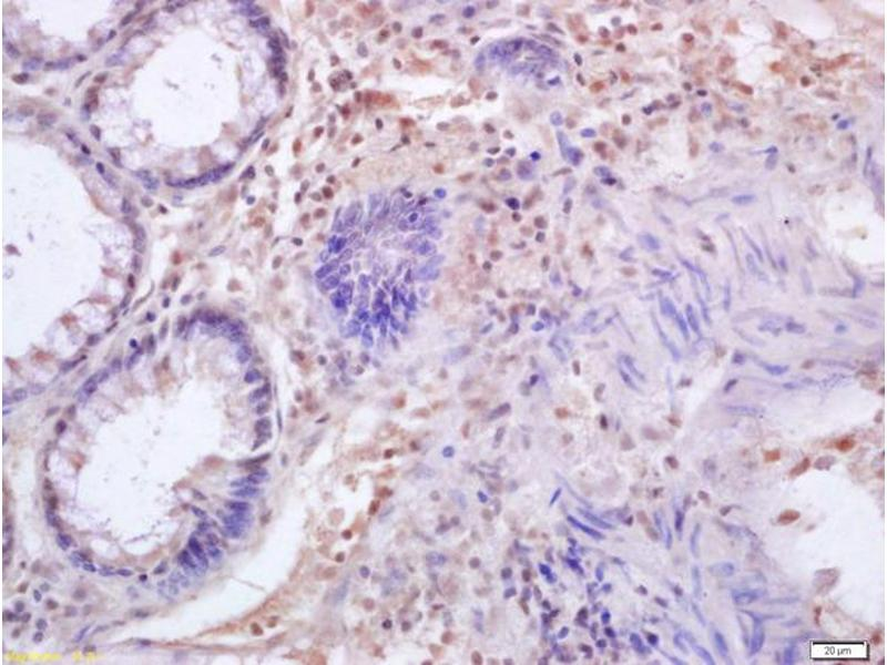 Immunohistochemistry (IHC) image for anti-Interferon Regulatory Factor 3 (IRF3) (AA 60-95) antibody (ABIN682588)