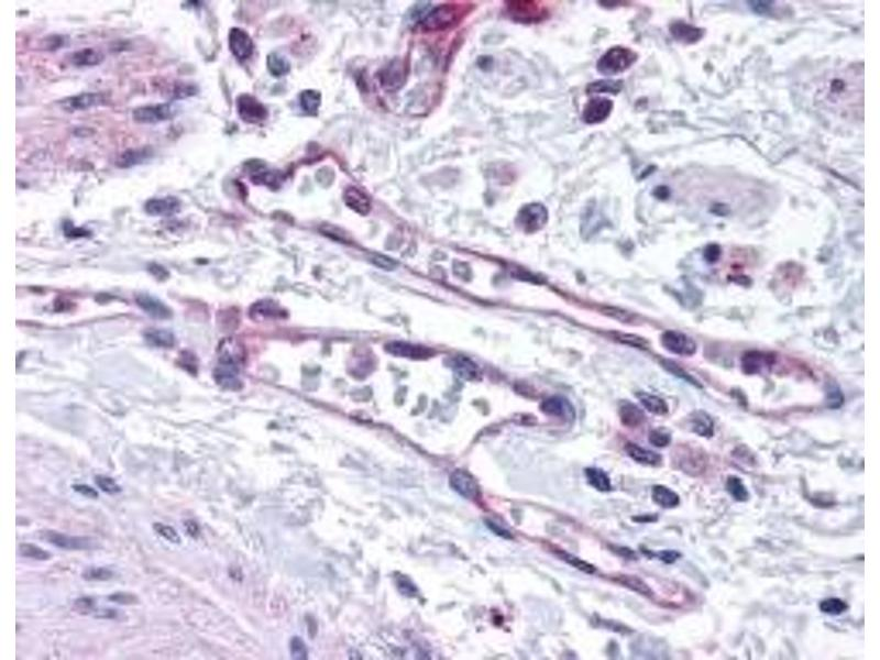 Immunohistochemistry (IHC) image for anti-Egl Nine Homolog 1 (C. Elegans) (EGLN1) antibody (ABIN152190)