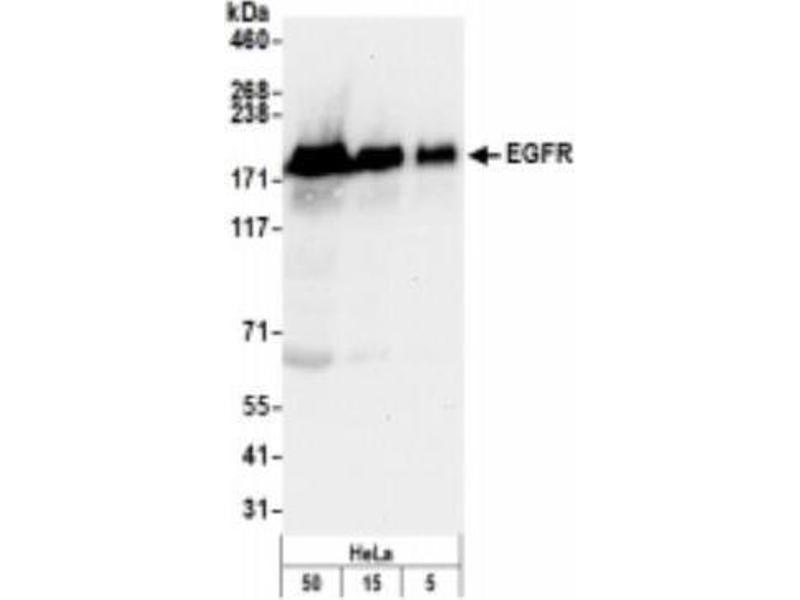 Western Blotting (WB) image for anti-EGFR antibody (Epidermal Growth Factor Receptor) (C-Term) (ABIN152028)