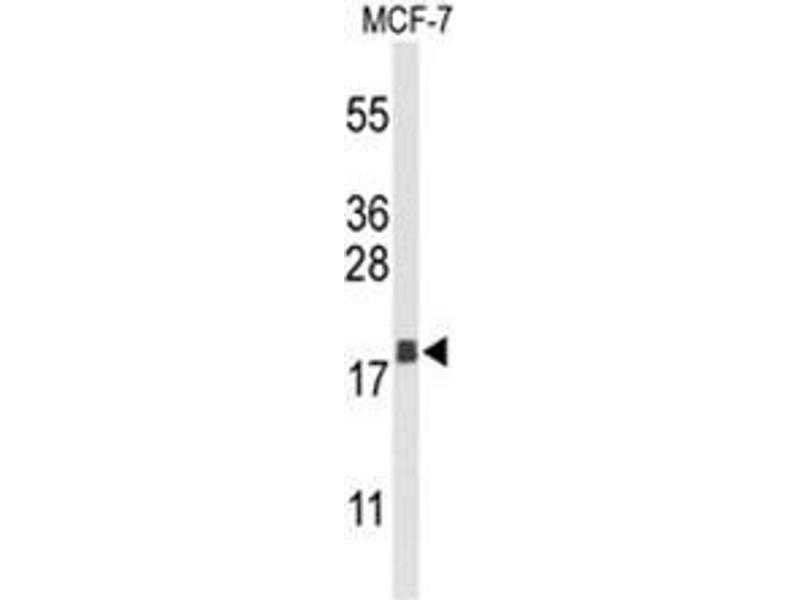 Western Blotting (WB) image for anti-Anterior Gradient 3 Homolog (Xenopus Laevis) (AGR3) (AA 126-155), (C-Term) antibody (ABIN950305)