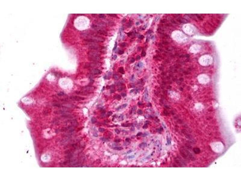 Image no. 2 for anti-Ectonucleotide Pyrophosphatase/phosphodiesterase 2 (ENPP2) antibody (ABIN2450529)