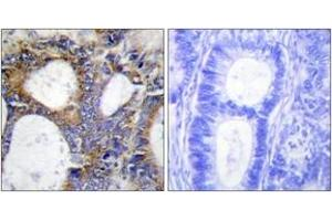 Image no. 2 for anti-Collagen, Type I, alpha 2 (COL1A2) (AA 471-520) antibody (ABIN1534337)