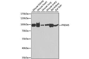 Image no. 1 for anti-PR Domain Containing 5 (PRDM5) antibody (ABIN6571093)