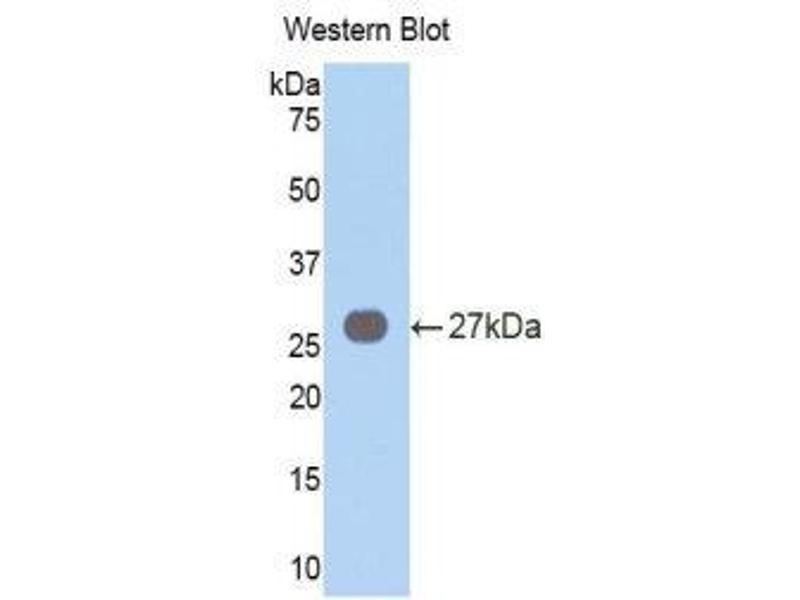 Western Blotting (WB) image for anti-Vav 3 Oncogene (VAV3) (AA 183-380) antibody (ABIN1860913)