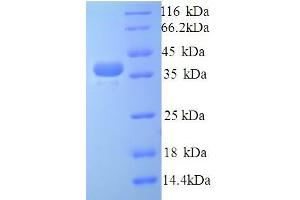 Image no. 1 for Talin 1 (TLN1) (AA 92-399), (partial) protein (His tag) (ABIN5714532)