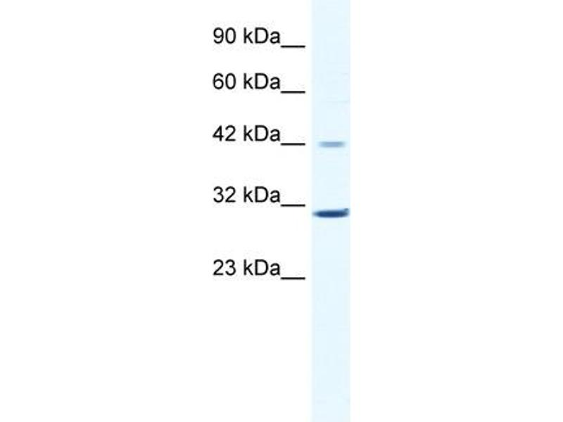 Western Blotting (WB) image for anti-Cyclin D3 (CCND3) (C-Term) antibody (ABIN2792167)