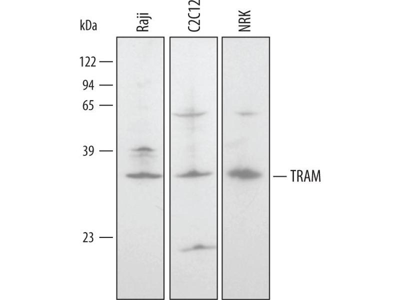 Western Blotting (WB) image for anti-Toll-Like Receptor Adaptor Molecule 2 (TICAM2) (AA 1-232) antibody (ABIN4899010)