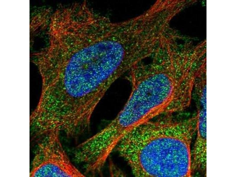 Immunofluorescence (IF) image for anti-Suppressor of Cytokine Signaling 5 (SOCS5) antibody (ABIN4355059)