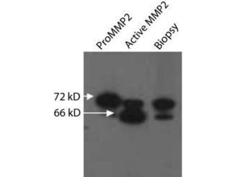 Western Blotting (WB) image for anti-Matrix Metalloproteinase 2 (MMP2) antibody (ABIN152258)