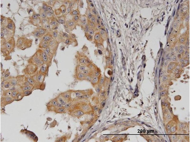 Immunostaining (ISt) image for anti-V-Erb-B2 erythroblastic Leukemia Viral Oncogene Homolog 2, Neuro/glioblastoma Derived Oncogene Homolog (Avian) (ERBB2) (AA 22-121), (partial) antibody (ABIN515369)