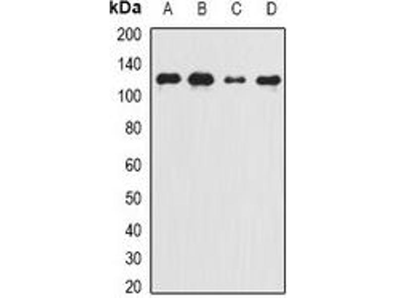 Western Blotting (WB) image for anti-Complement Component 5 (C5) Antikörper (ABIN3197608)