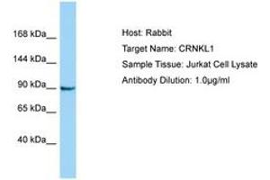 Image no. 1 for anti-Crooked Neck Pre-mRNA Splicing Factor-Like 1 (Drosophila) (CRNKL1) (AA 760-809) antibody (ABIN6750173)